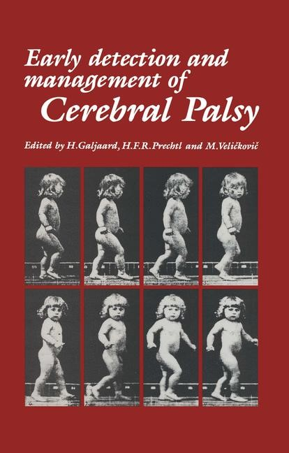 Abbildung von Galjaard / Prechtl / Velickovic | Early Detection and Management of Cerebral Palsy | 1987