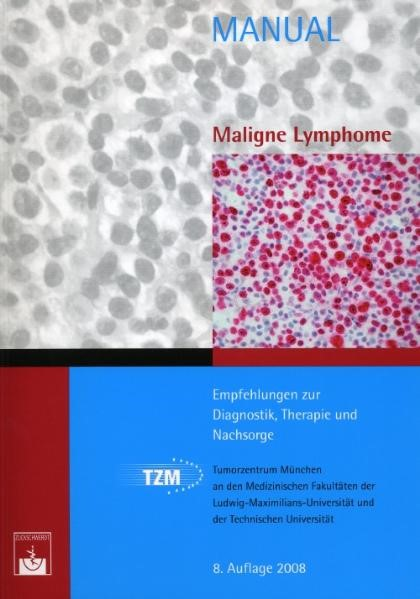 Maligne Lymphome | / Dreyling, 2008 | Buch (Cover)