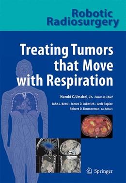 Abbildung von Kresl / Luketich | Robotic Radiosurgery. Treating Tumors that Move with Respiration | 2007 | Treating Tumors that Move with...