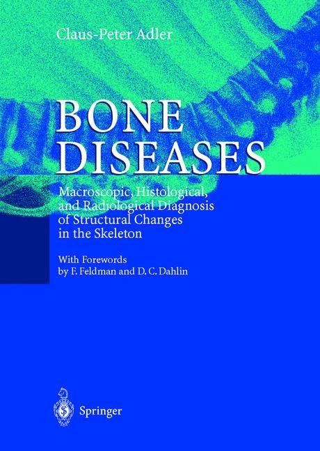 Bone Diseases | Adler, 1999 | Buch (Cover)