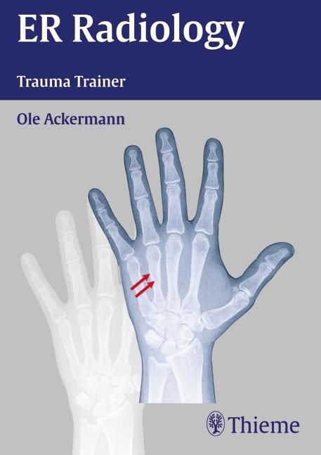 ER Radiology Trauma Trainer | Ackermann / Ruchholtz / Siemann | . 66 illustrations by T.B. Moeller, 2007 (Cover)