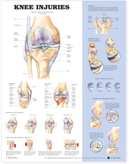Abbildung von Knee Injuries Anatomical Chart | 2004
