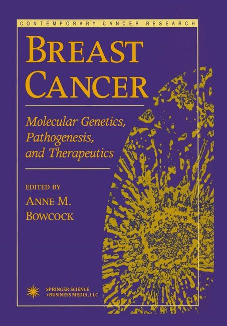 Abbildung von Bowcock | Breast Cancer | 1st Edition. Softcover version of original hardcover edition 1999 | 2010