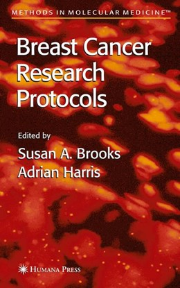 Abbildung von Brooks / Harris | Breast Cancer Research Protocols | 1st Edition. Softcover version of original hardcover edition 2006 | 2010 | 120