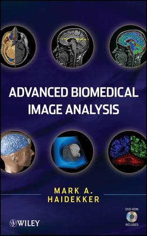 Abbildung von Haidekker   Advanced Biomedical Image Analysis   1. Auflage   2010