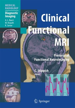 Abbildung von Stippich | Clinical Functional MRI | 2010 | Presurgical Functional Neuroim...