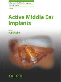 Abbildung von Böheim | Active Middle Ear Implants | 2010 | 69