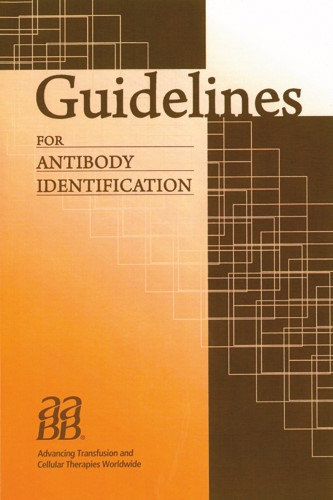Guidelines for Antibody Identification | Moulds / Kowalski, 2011 | Buch (Cover)