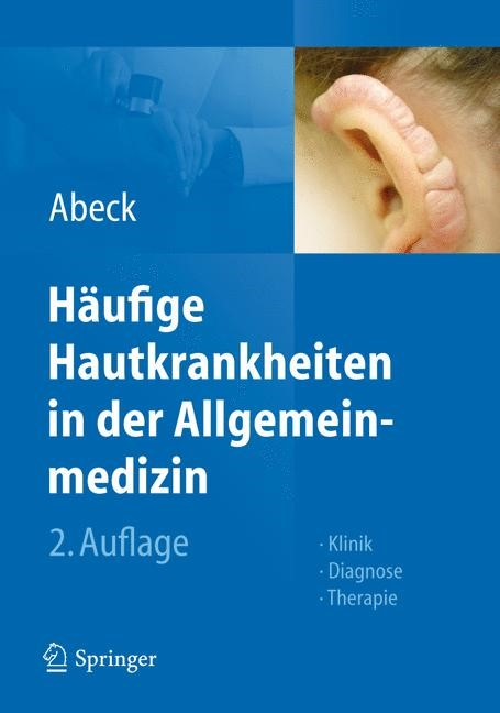Abbildung von Abeck   Häufige Hautkrankheiten in der Allgemeinmedizin   2., überarb. u. erw. Aufl. 2012   2011