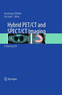 Abbildung von Delbeke / Israel | Hybrid PET/CT and SPECT/CT Imaging | 2010 | 2010