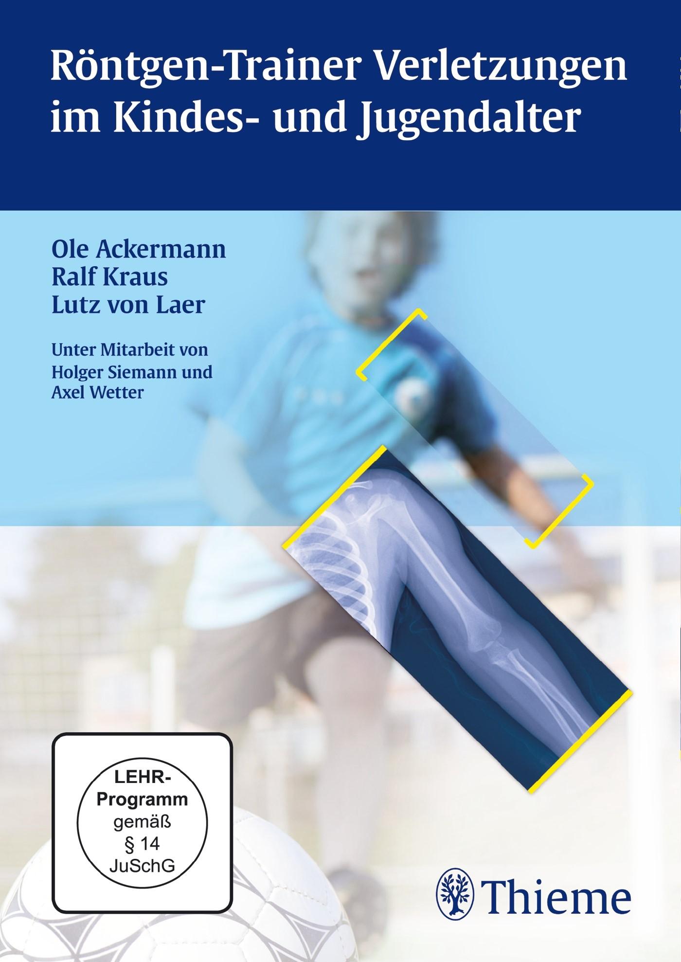 Röntgen-Trainer Verletzungen im Kindes- und Jugendalter | Ackermann / Kraus / von Laer, 2013 (Cover)