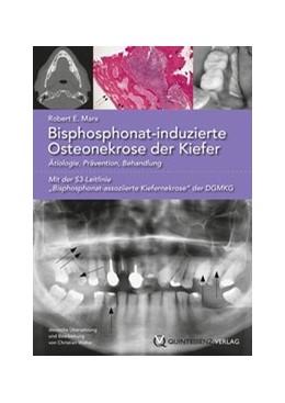 Abbildung von Marx | Bisphosphonat-induzierte Osteonekrose der Kiefer | 2013 | Ätiologie, Prävention, Behandl...